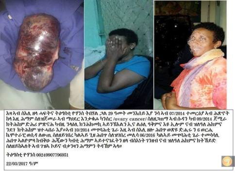 Cancer-Victims-in-Sudan-4