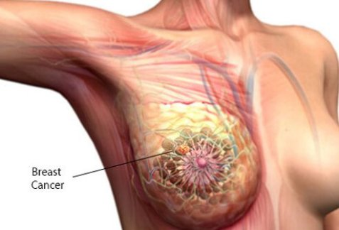 breast_cancer_model